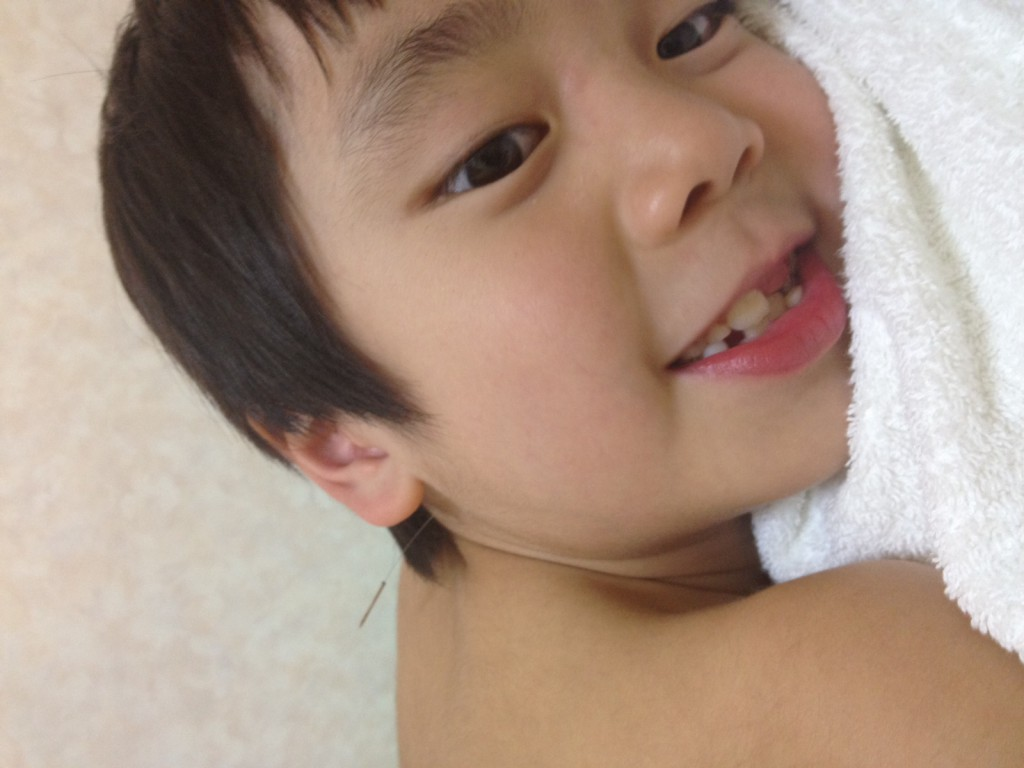 息子の小学二年生が鍼治療を初体験